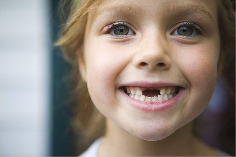 Die Milchzähne fallen uns aus; auf die nachwachsenden Zähne müssen wir ein Leben lang aufpassen