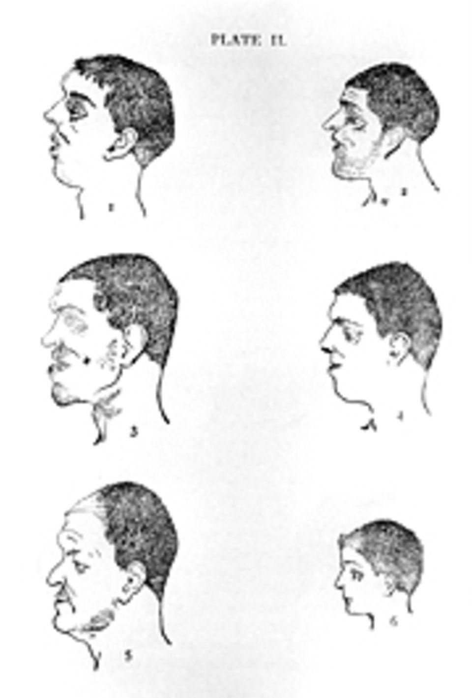 Das Gehirn: Porträts von Kriminellen aus einer Phrenologie-Studie von 1895. Bereits 100 Jahre zuvor untersucht Gall die Schädel von Raufbolden und postuliert, dass ihr Kopf hinter den Ohren breiter sei als der von Feiglingen