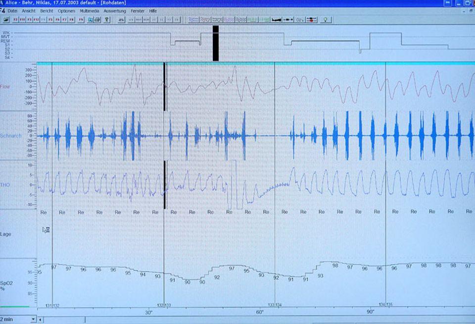 Forschung: Etwa in der Mitte der Aufzeichnung setzt der Atem des Patienten aus. Gleichzeitg ist auch kein Schnarchen mehr zu hören. Die Kurve ganz unten zeigt, dass auch der Sauerstoff-Gehalt im Blut sinkt