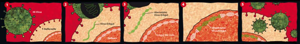 """Aids: Ein HI-Virus hat winzige Noppen auf seiner Oberfläche, kleine """"Schlüssel"""", mit denen es ganz bestimmte Zellen aufschließen kann, in der Grafik etwa eine T-Helferzelle 1. Hat es solch eine Zelle erkannt, dockt das Virus an und verschmilzt damit. Gleichzeitig schleust es sein Erbgut, also seinen Bauplan, in die Zelle ein 2. Bloß: Dieser Bauplan ist in einer Sprache geschrieben, mit der die Zelle nichts anfangen kann. Darum wird der Bauplan nun in eine verständliche Sprache übersetzt 3. Und genau diese Übersetzung wird im nächsten Schritt in das Erbgut im Zellkern der Zelle eingebaut 4. Danach läuft in der Zelle alles nur noch nach dem Plan des Virus ab. Und das bedeutet: Die Zelle produziert ständig neue Viren 5 , bis sie am Schluss selbst daran zugrunde geht."""