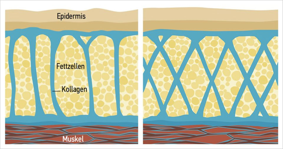 Orangenhaut: Weibliches Bindegewebe (links) unter der Haut erinnert an ein Säulengewölbe, das Fettzellen viel Raum lässt. Gitter aus Kollagenfasern machen das Bindegewebe des Mannes fest. Es bändigt Fettzellen besser.