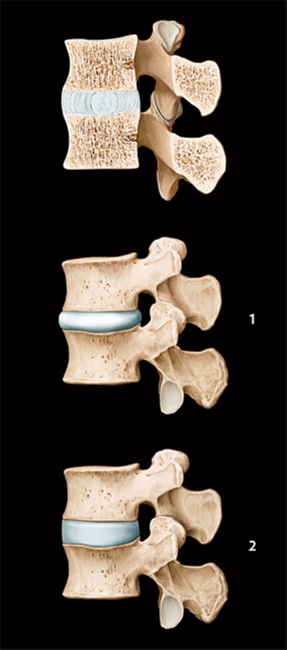 Wirbelsäule: Die Wirbel werden durch die Bandscheiben abgepuffert: elastische Gebilde mit einem gallertartigen Kern und reißfester Hülle. Unter Belastung werden die Bandscheiben zusammengepresst (1) Wird der Rücken wieder entlastet (2), können sich die Dämpfer regenerieren, sie nehmen wie ein Schwamm Nährstoffe und Flüssigkeit auf. Der regelmäßige Wechsel zwischen den beiden Zuständen erhält die Bandscheiben flexibel