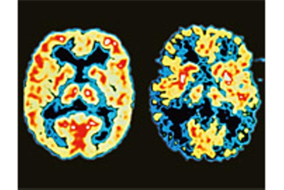 Alzheimer-Früherkennung: Demenz: Sollte man sich testen lassen?