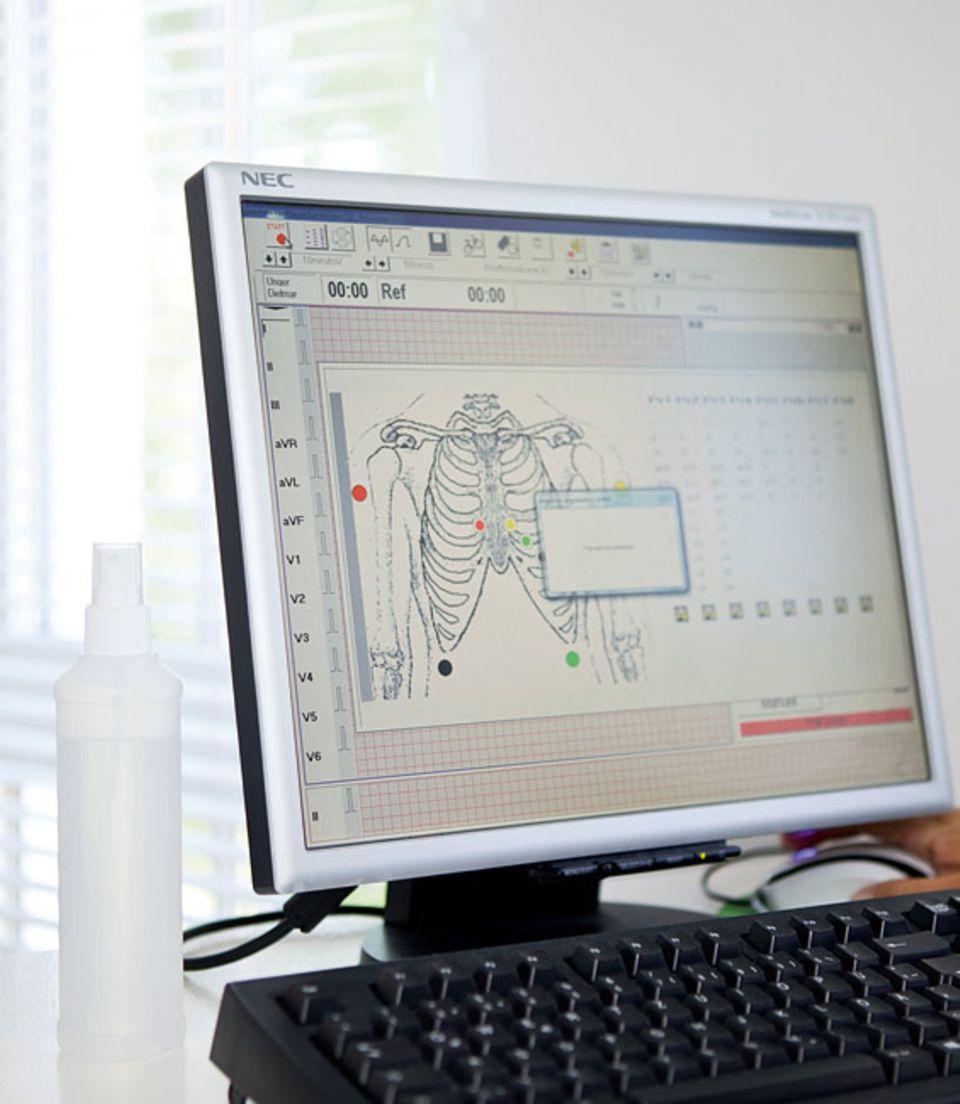 Herzleiden: Wo genau am Körper müssen die Elektroden für das EKG angeklebt werden? Das Computerprogramm zeigt es