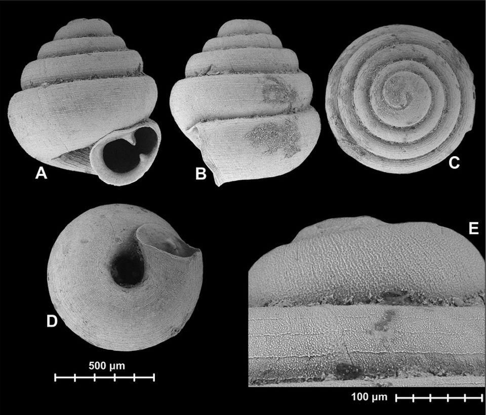 Schnecken: Erst unter dem Mikroskop offenbart Angustopila dominikae ihre filigrane Schönheit