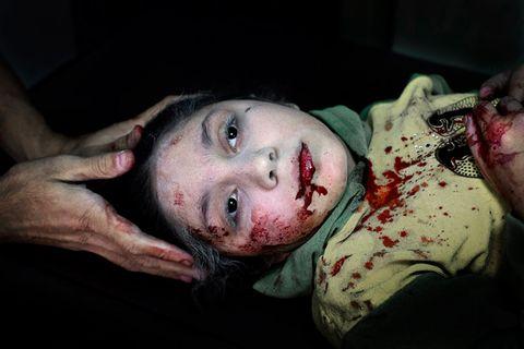 Das Unicef-Foto des Jahres: Das Gesicht des Krieges