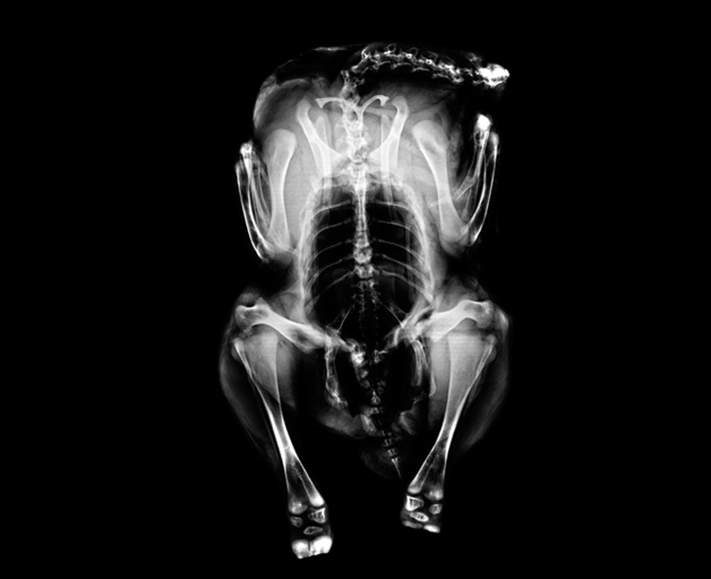 Röntgen: Röntgenstrahlung - Voller Durchblick