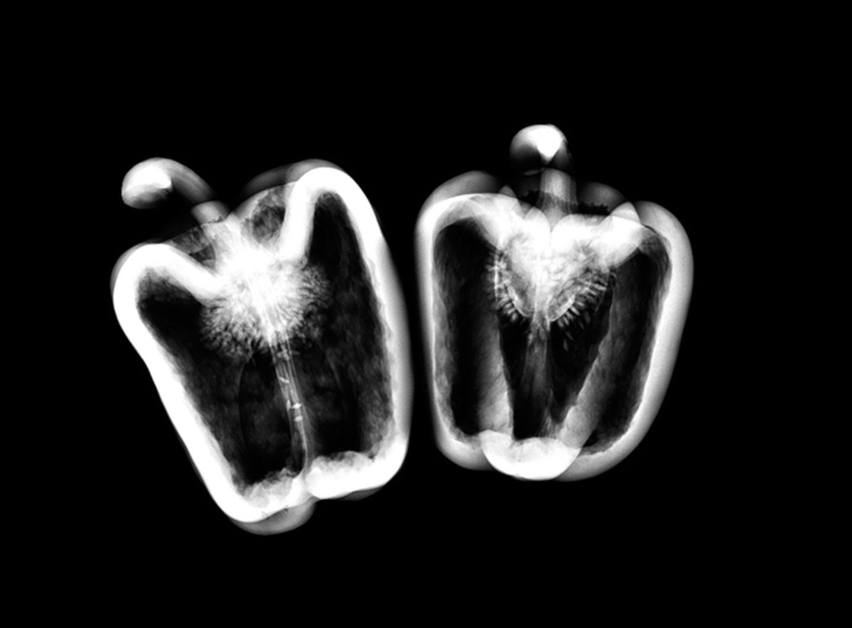 Röntgen: Röntgenstrahlung: Voller Durchblick - Bild 3