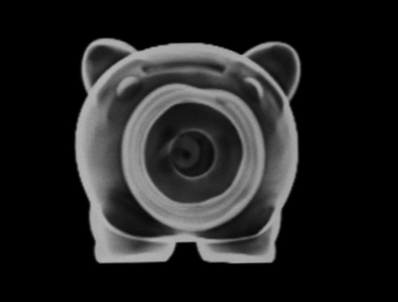 Röntgen: Röntgenstrahlung: Voller Durchblick - Bild 11