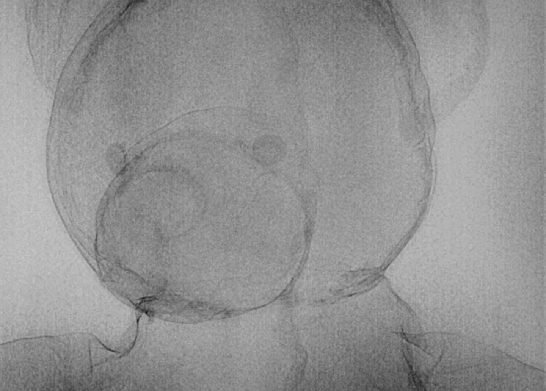 Röntgen: Röntgenstrahlung: Voller Durchblick - Bild 18