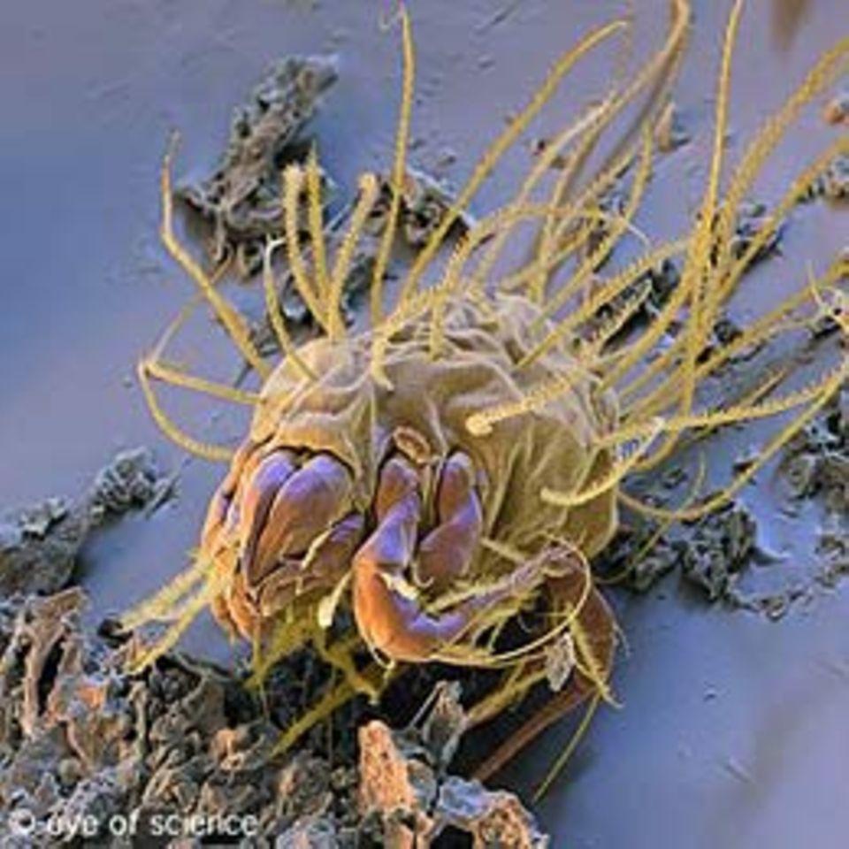 Parasiten: Wanzen, Milben, Zecken: Wer auf uns so alles wohnt