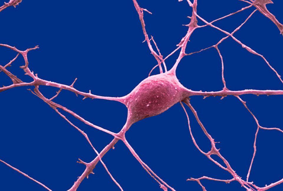 """Was Nerven so tun: """"Purkinjezellen"""" im Kleinhirn helfen uns, das Gleichgewicht zu halten"""