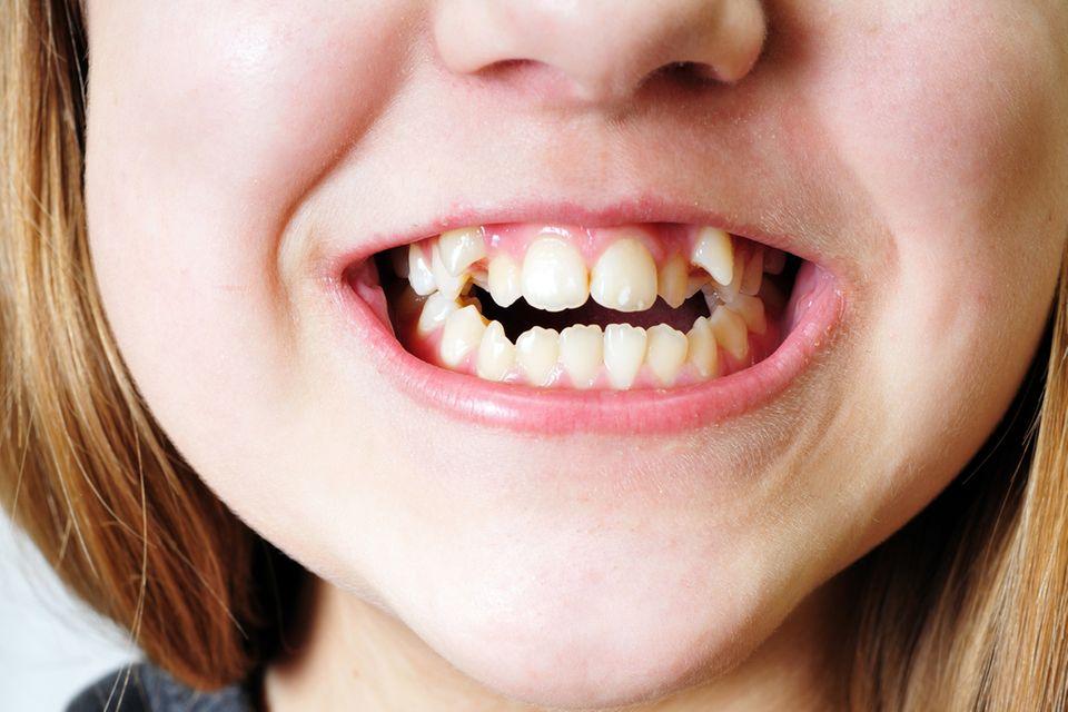 Redewendung: Zähne zeigen