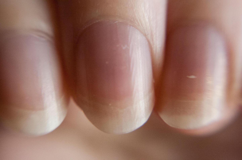 Fingernägel, Flecken