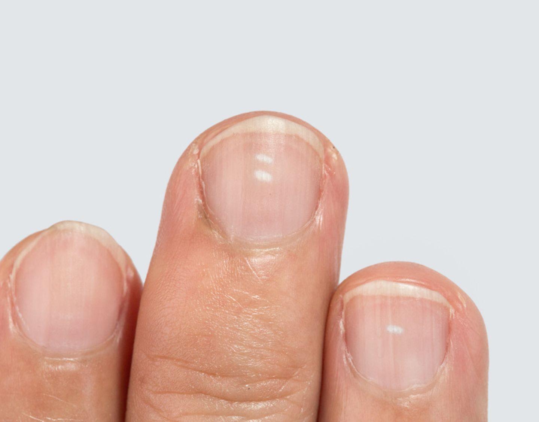 Endlich verstehen: Auch auf den gepflegtesten Fingernägeln können von Zeit zu Zeit die unliebsamen, weißen Flecken auftauchen. Woher kommen sie?