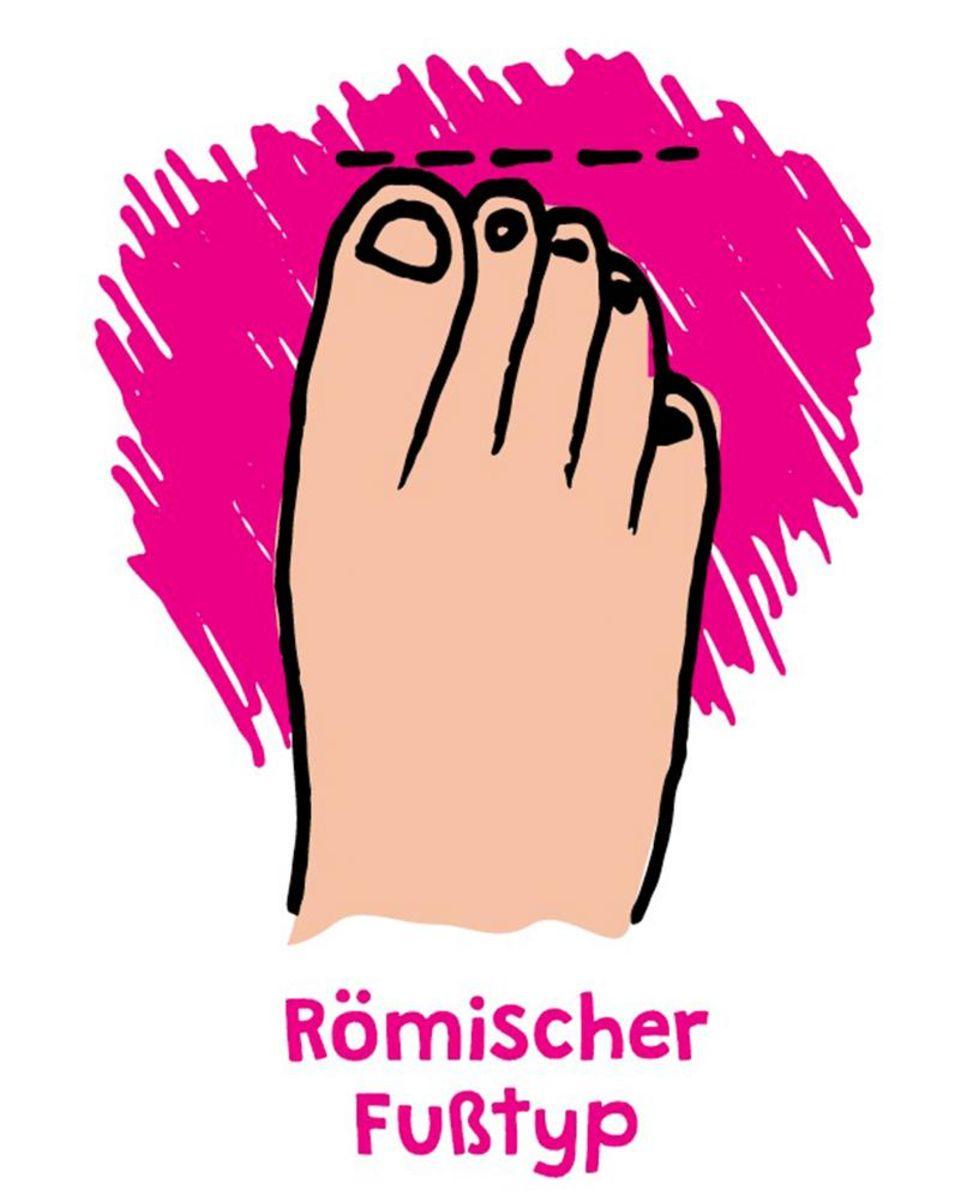 Römischer Fußtyp