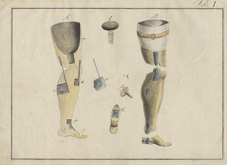 Beinprothesen, Entwurf von Albrecht Berblinger