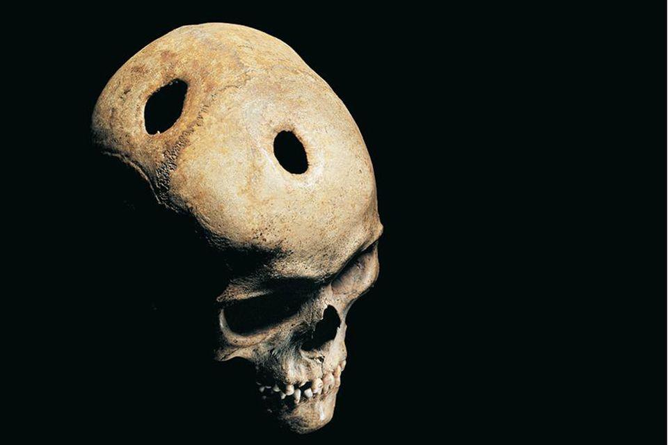 Jungsteinzeit: Der unsichtbare Feind: Wie die Seuchen in die Welt kamen