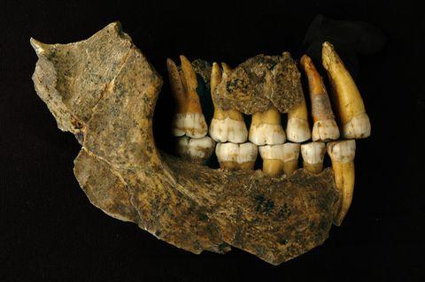 Unterkiefer eines Neandertalers