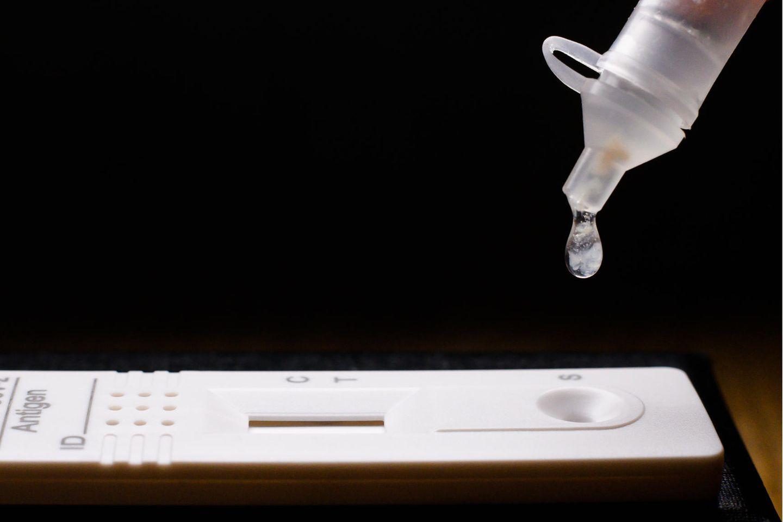 Hände und Arbeitsfläche sollten bei der Durchführung des Selbsttests sauber sein