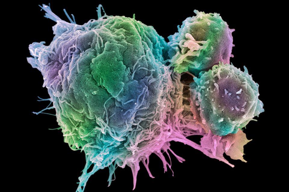Kampf gegen Tumore: Was mit modernen Krebstherapien alles möglich ist