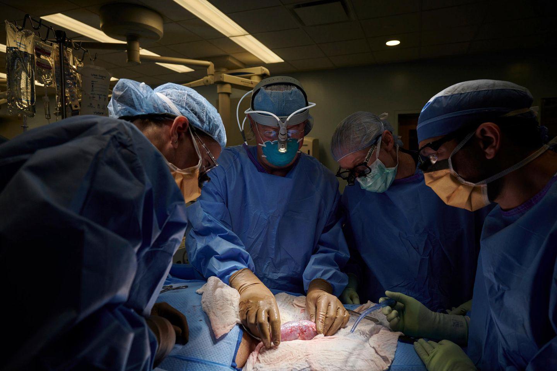 Ein Chirurgenteam untersucht eine Schweineniere am Körper eines Verstorbenen